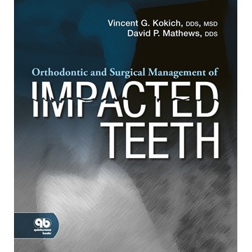 Orthodontic and Surgical Management of Impacted Teeth