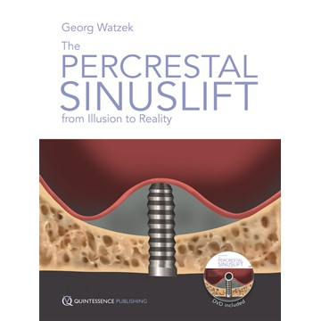 The Percrestal Sinuslift